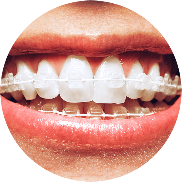 Clear Braces, Invisalign alternative, fast braces alternative, quick straight teeth alternative