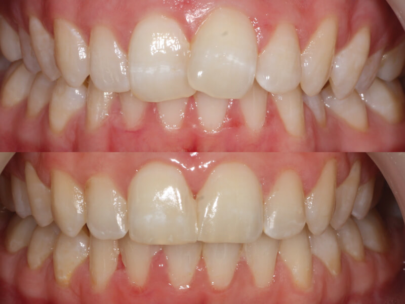 Overlap and Overbite - Six Month Smiles