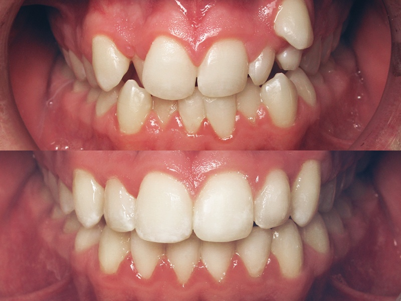 Six Month Smiles: Case Selections