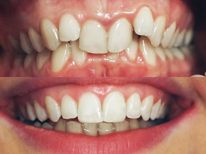 Deep Bite - Six Month Smiles