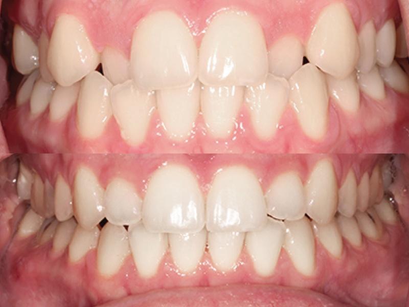 Anterior Cross Bite - Six Month Smiles