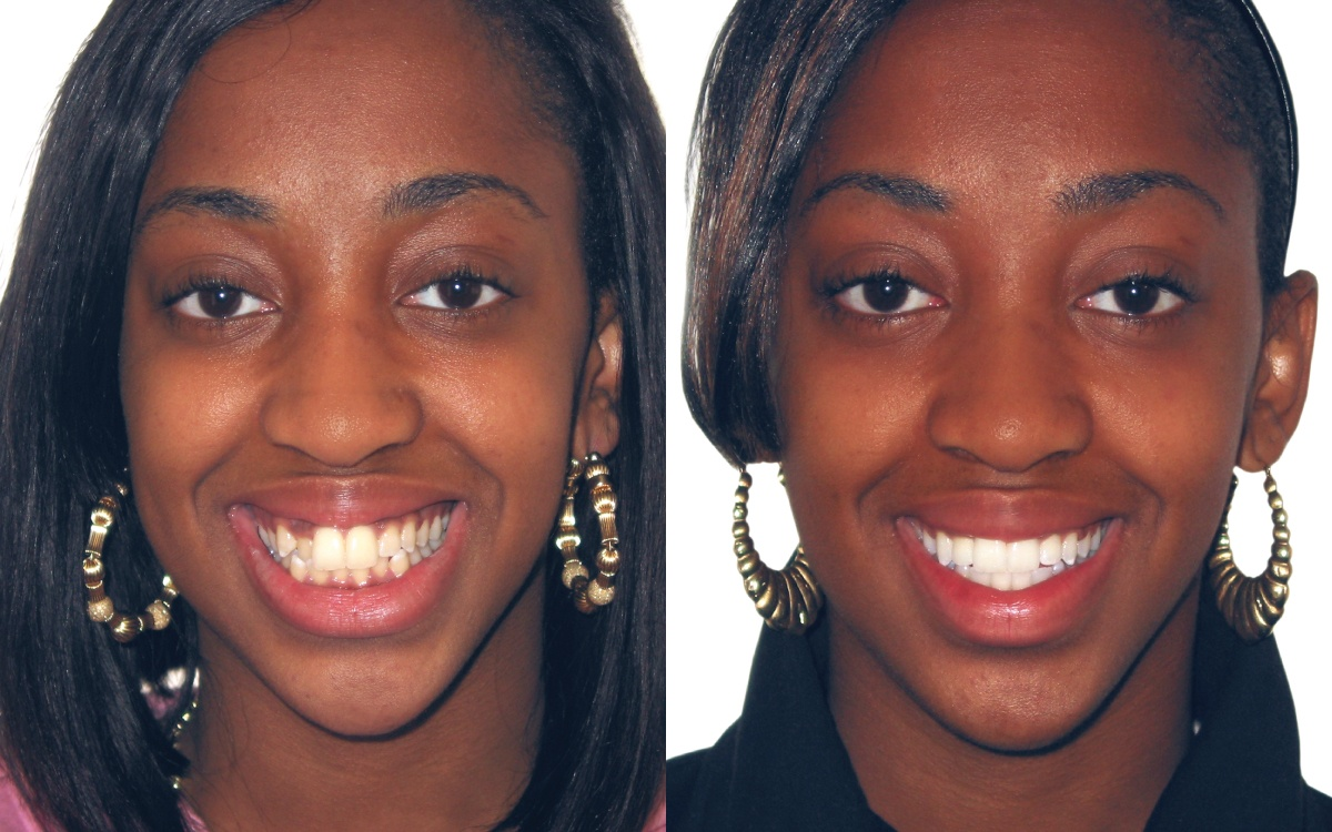 Before and after adult braces rather valuable