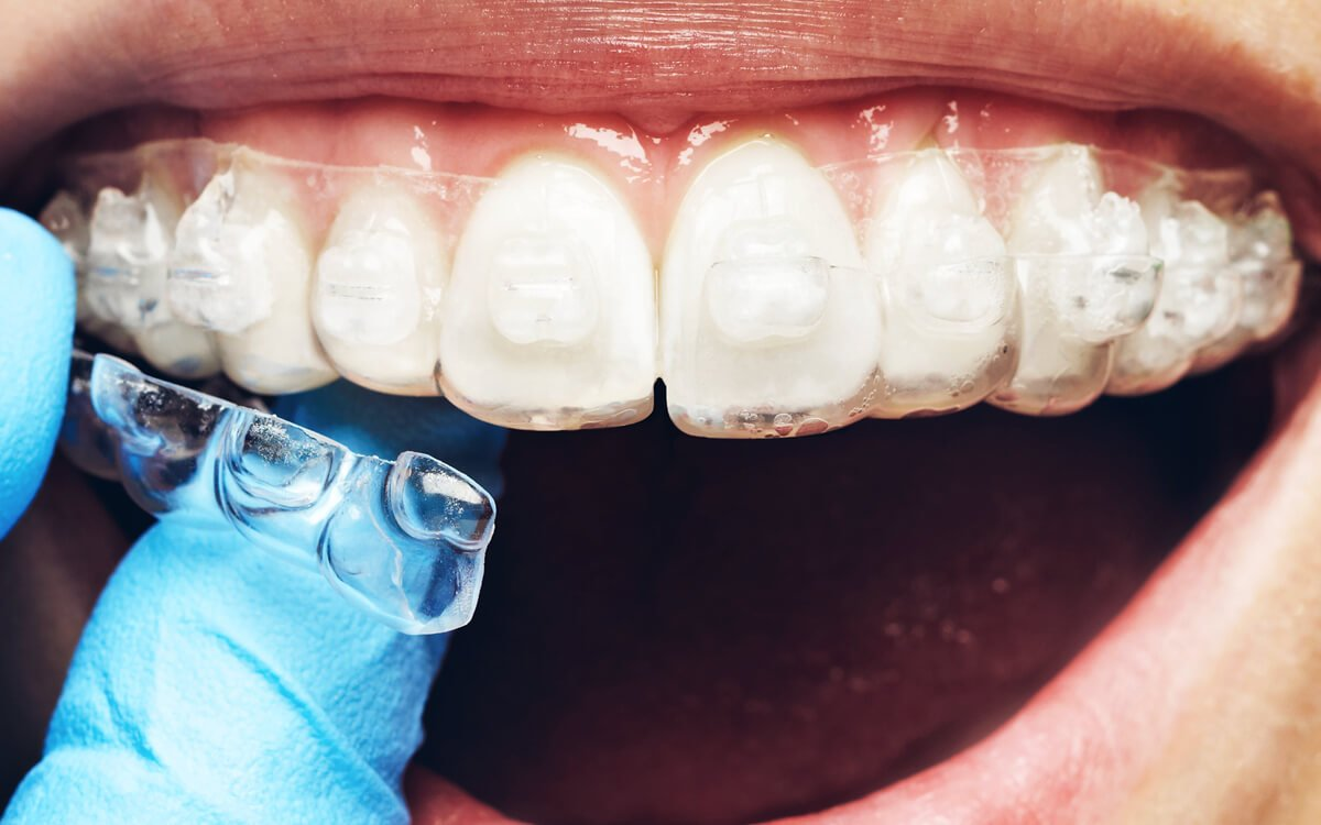 Orthodontics for the General Dentist