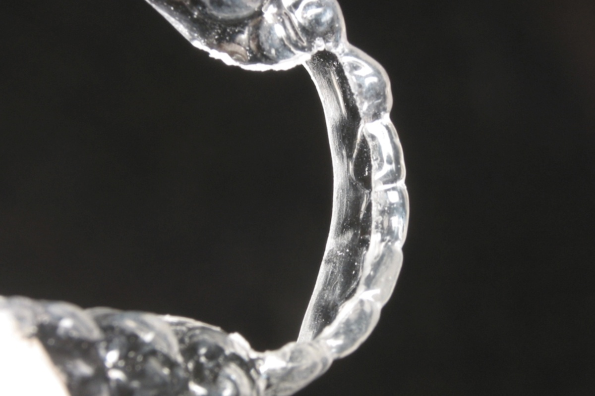 Orthodontic Retention - Clear Retainer