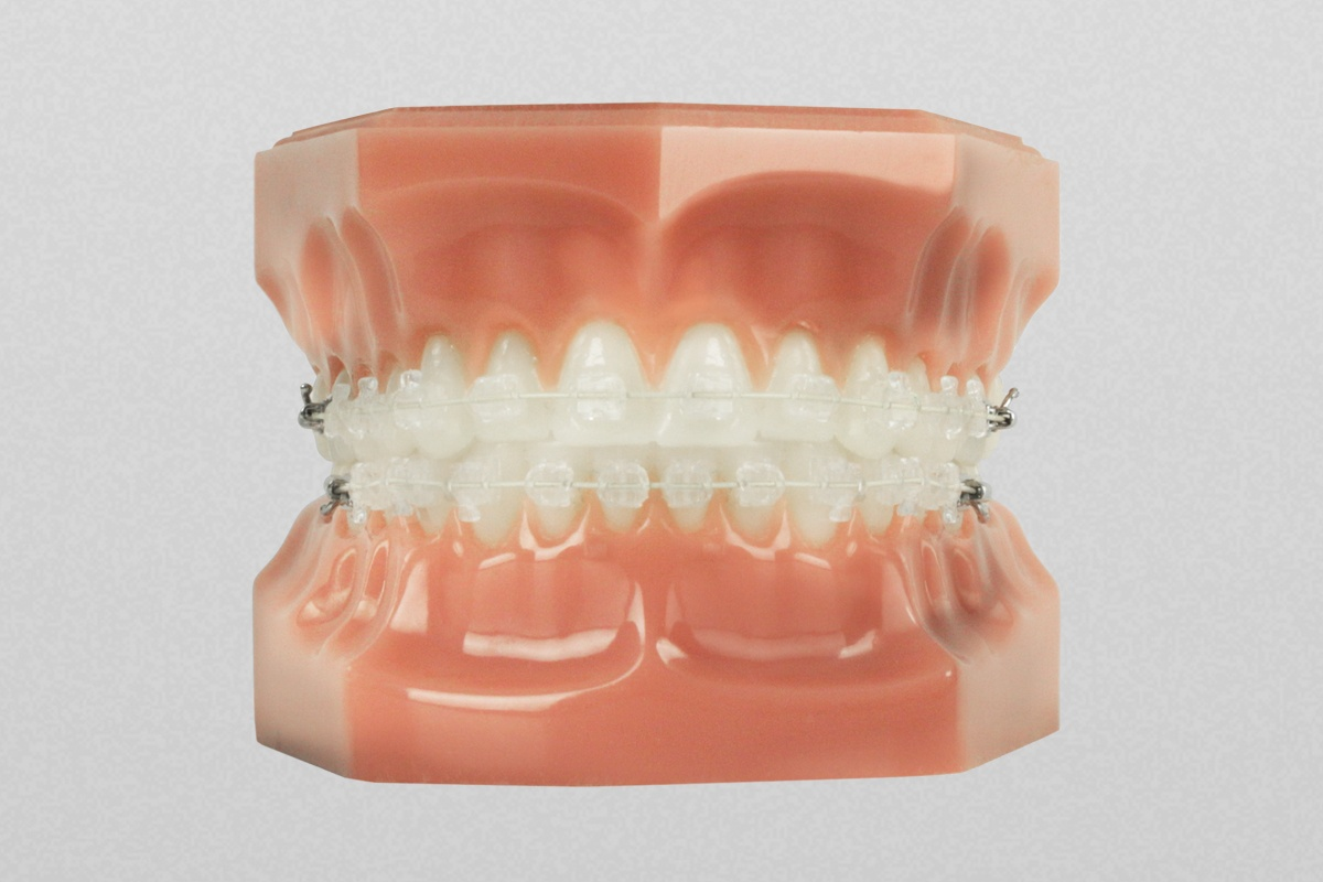 Six Month Smiles - Orthodontic Retention